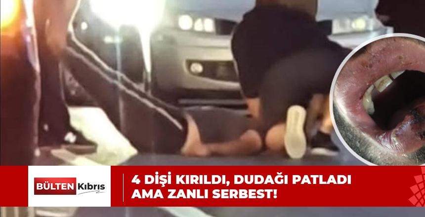 4 DİŞİ KIRILDI, DUDAĞI PATLADI AMA ZANLI SERBEST!